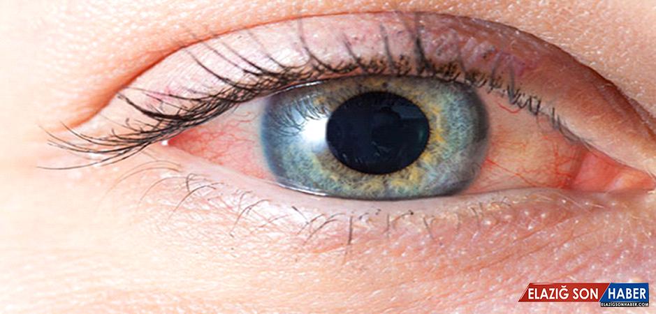 Göz Kızarıklıkları Hastalık Habercisi Olabilir