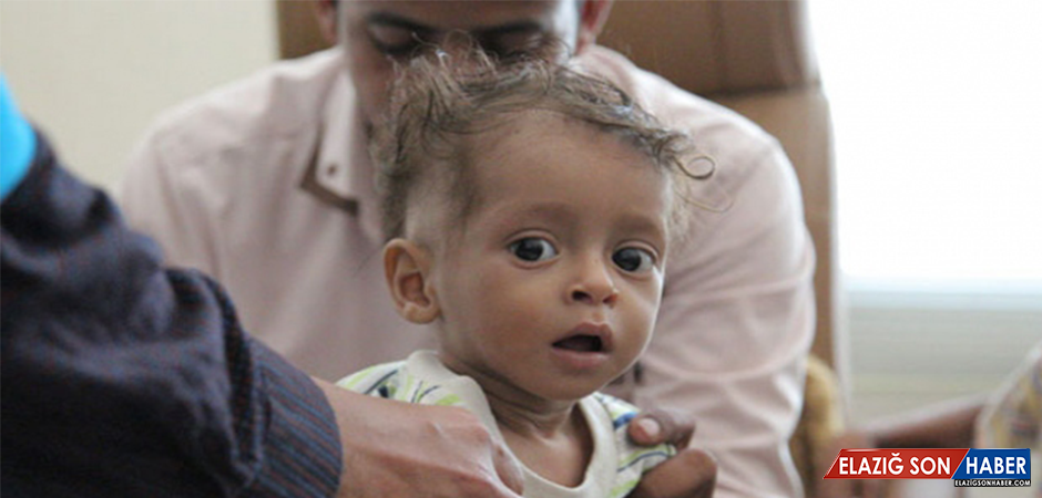 Hudeyde'de 100 Bin Çocuğun Sağlığı Tehlikede