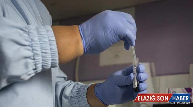 HIV nedeniyle geçen yıl yaklaşık 940 bin kişi hayatını kaybetti