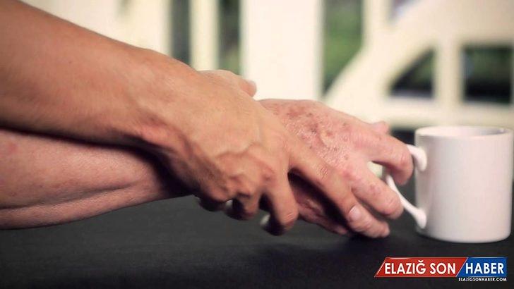 Bilim İnsanları, Parkinson Hastalığının Nerede Başladığını Keşfetti