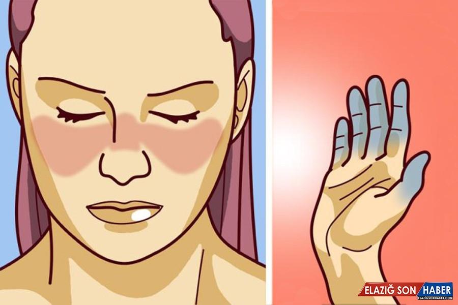 Bilim İnsanları, Önemli Bir Hastalık Olan Lupusun Sebebini Ortaya Çıkardı
