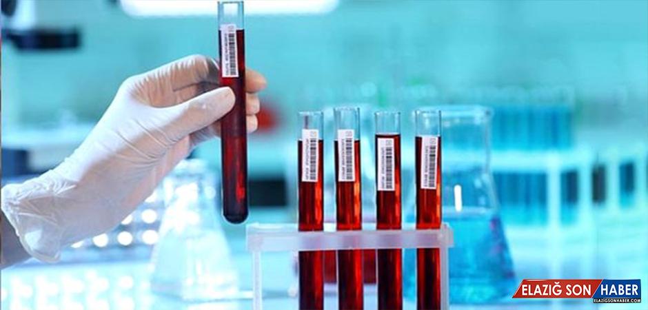 Bilim insanları, 10 yıl içinde ölüp ölmeyeceğinizi tahmin eden kan tahlili geliştirdi