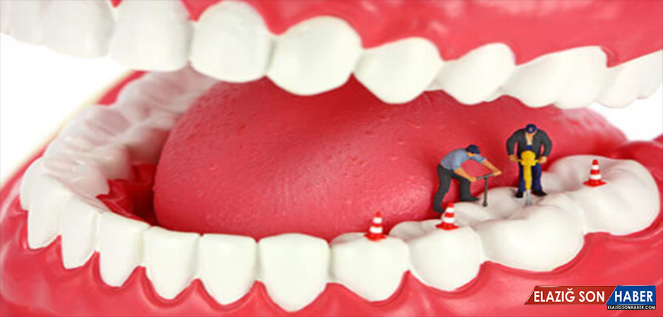 Bu Besini Dişlerinize Sürerseniz Çürük Ortadan Kalkıyor