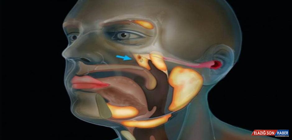 Bilim İnsanları, Kafatasında Yeni Bir Organ Buldu
