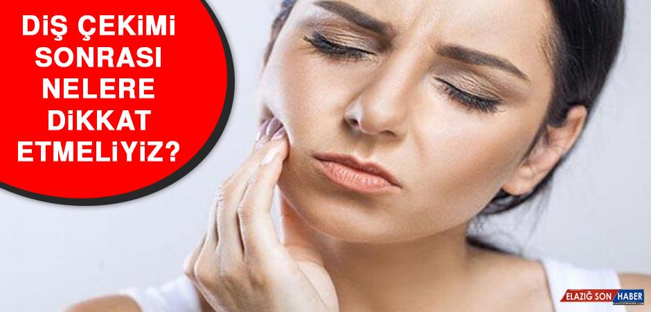 Diş çekimi sonrası nelere dikkat etmeliyiz?