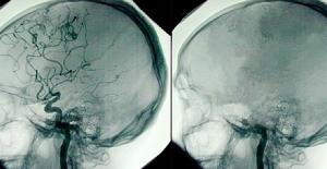 Beyin Ölümü Nedir