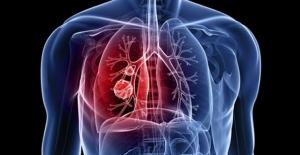 Öksürünce akciğeri fırlayan hasta hayatını kaybetti