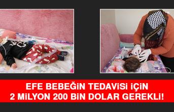 Efe Bebeğin Tedavisi İçin 2.2 Milyon Dolar Gerekli
