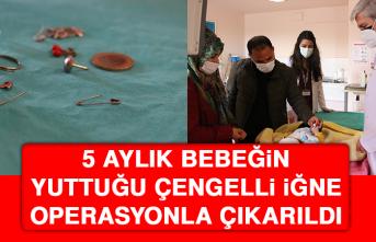 5 Aylık Bebeğin Yuttuğu Çengelli İğne Operasyonla Çıkarıldı