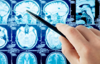 MS ve ALS hastalarına yeni umut