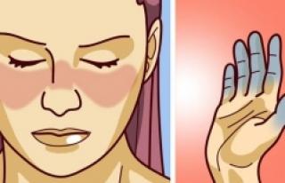 Bilim İnsanları, Önemli Bir Hastalık Olan Lupusun...