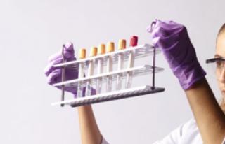 Ankara Üniversitesinde Aşı ve Tanı Kiti Çalışmaları...